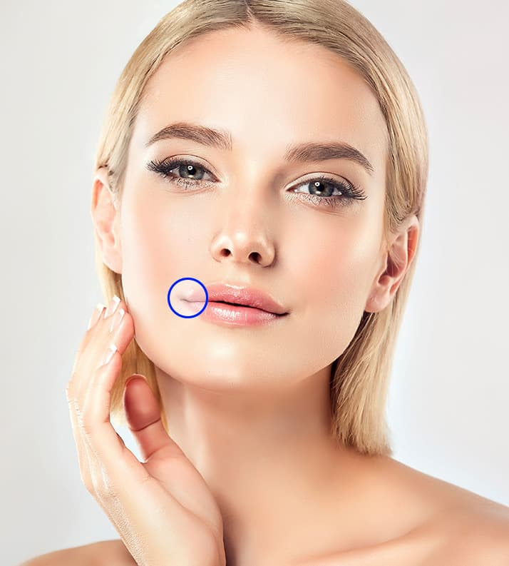Treatment planner model showing thin lips
