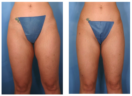 Liposuction before and after photos front view of woman's thighs