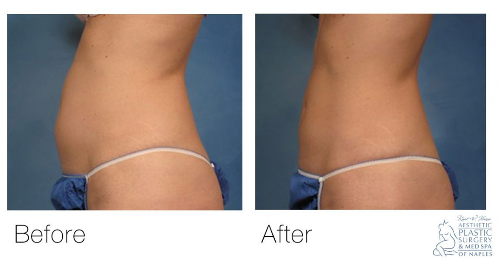 CoolSculpting before and after woman's abdomen side view
